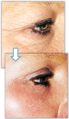 Laserbehandling av rynkor under ögonen