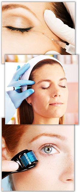 Behandling av skrattrynkor utförs med botox, filler eller dermaroller