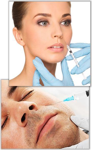 Fillers och botox mot nasolabiala veck