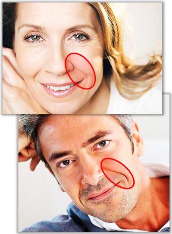 Rynkor mellan näsan och munnen kallas för nasolabiala veck