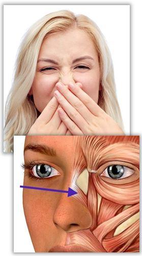Rynkor på näsan
