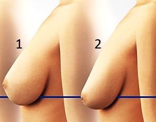 Nedre brösthäng