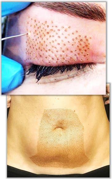Plasmaljusbehandling av ögonlock och slapp hud på magen.