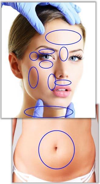 En plasmaljusbehandling kan användas i både ansiktet och på kroppen.