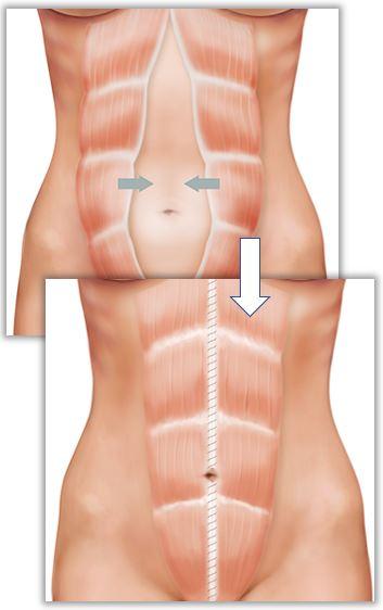 Reparation av delade magmuskler