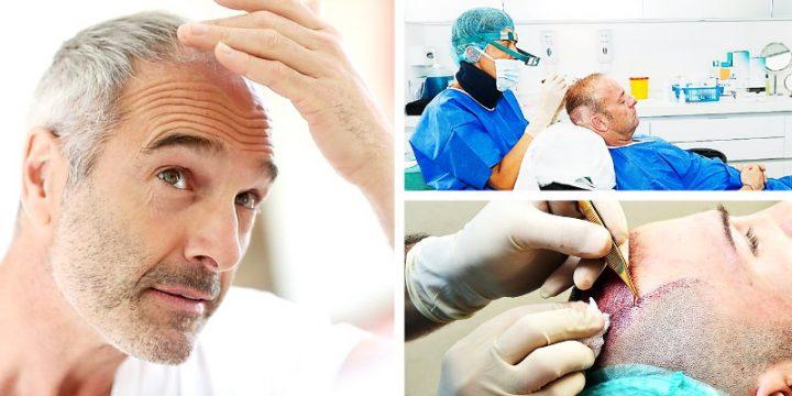 Allt om hårtransplantation