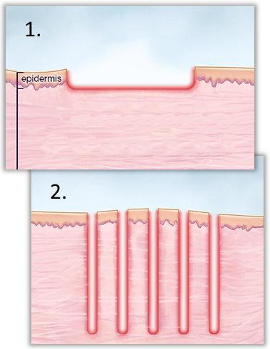 Ablativ laserslipning