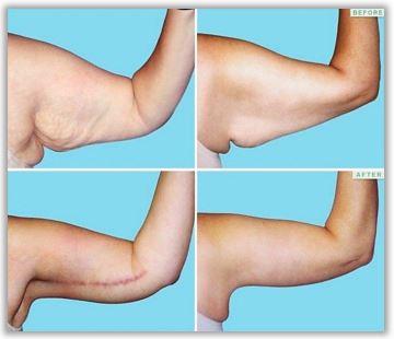 Före och efter armplastik