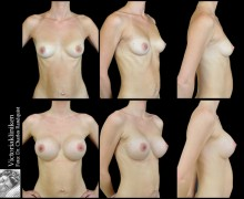 Bröstförstoring på Victoriaklinken