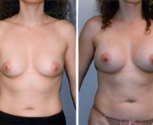 370cc-anatomiska-implantat-0064f3425e9345f8fadcbcb001db81d7ebe71eb2