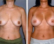 520cc-anatomiska-implantat-101e8fb70907d830a784fdc329eacd680325d9ee