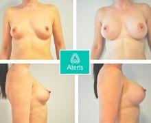 Ålder: 34 år | Bröstimplantat: 375 cc, droppformat | Klinik: Aleris