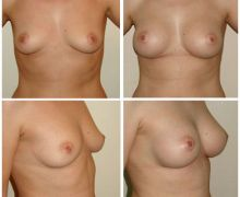 anatomiska-brostimplantat-mentor-27505e643652a447c944663a0f792a8dceee435b
