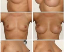 anatomiska-implantat-framfor-8786c0820af959594174b9d2d67bf0fd72680247