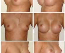 anatomiska-mentor-framfor-2a1b3dd2f089cba5da8b9f62748505a775290f06