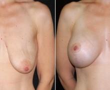 brostimplantat-brostlyft