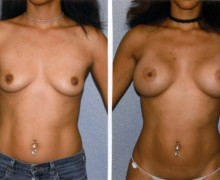 runda-implantat-hog-profil-12f6fa05773f6feb8d2b4dfe82f2691a199cdcda