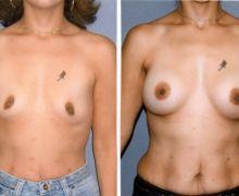 runda-implantat-submuskulart-dce5511bf741cb12b807833825b243af13583ec1