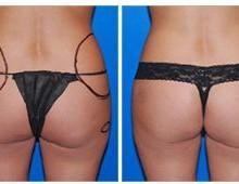 bodyjet-fettsugning-hofter