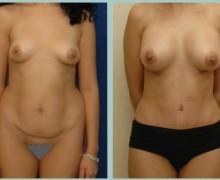 bodyjet-fetttransplantation-brost
