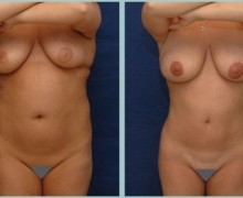 bodyjet-fetttransplantation