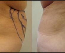 fettsugning-hofterna