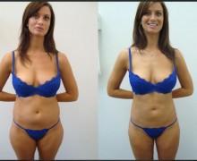 bröstförstoring före och efter