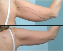 laserfettsugning-arm-bakifran