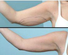 laserfettsugning-arm-framifran