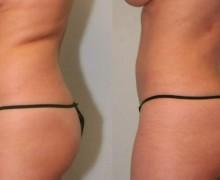 laserfettsugning-mage-midja2