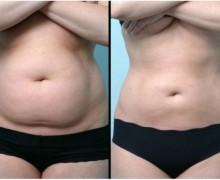 fettsugning mage före och efter