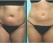 fettsugning före och efter bilder
