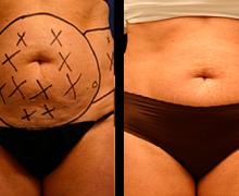 smartlipo-mage-hofter-kvinna
