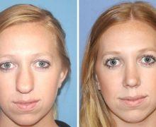 Näsplastik bred näsa