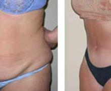 Operation av särade magmuskler
