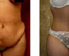 Operation av hudveck på magen
