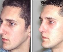 Näsoperation av knöl på näsan