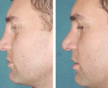 Förminskning av nästippen med näskirurgi