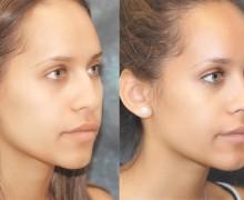 Näsplastik, afrikansk, mörkhyad kvinna
