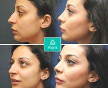 Näsoperation utförd på Aleris Plastikkrurgi
