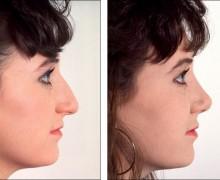 Förkortning av näsan