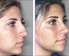 Plastikoperation av näsan