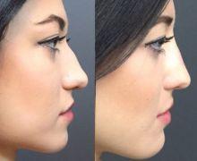 Näsoperation knöl på näsan