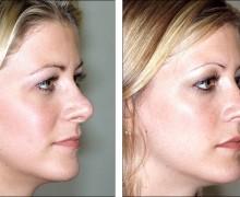 Näsplastik av story synliga näsborrar