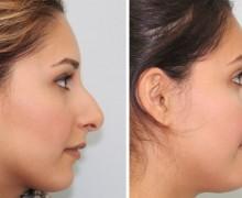 Operation av krokig näsa
