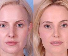 Efterbild näsoperation