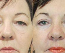 Ögonlocksoperation av hängande ögonlock