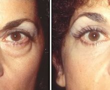 Ögonlocksoperation av påsar under ögonen