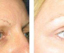 Ögonlocksoperation av hängande övre ögonlock.