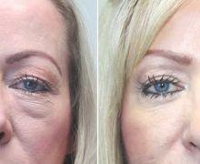 Bild av en nedre ögonlocksoperation
